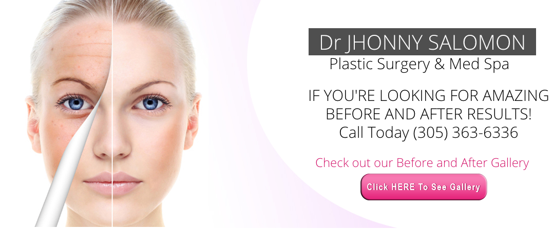shopping latest discount official site Dr. Jhonny A Salomon Plastic Surgery & Med Spa reviews ...