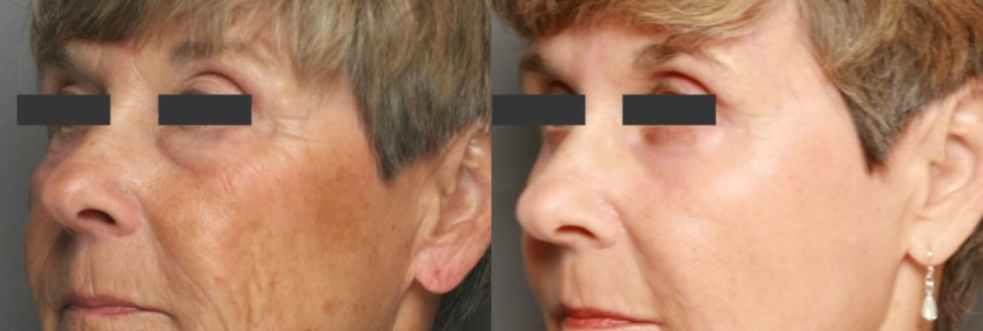 Laser Hair & Skin Centre reviews   Laser Hair Removal at 3916 Macleod Trail SE - Calgary AB